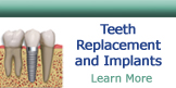 Teeth Replacements and Implants